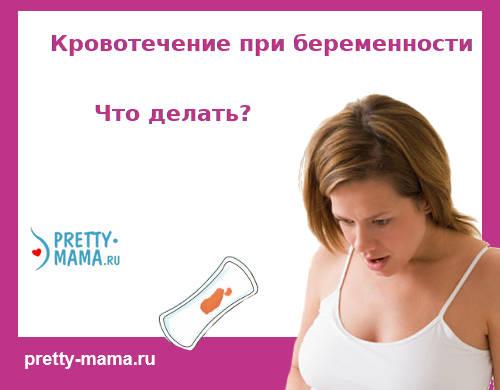 кровотечение при беременности: причины