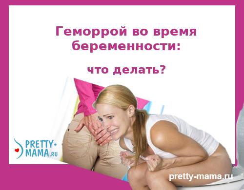 геморрой во время беременности