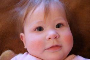 аллергия у малыша на щеках